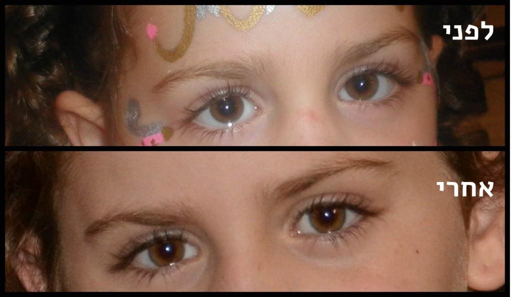 לפני ואחרי ניתוח פזילה