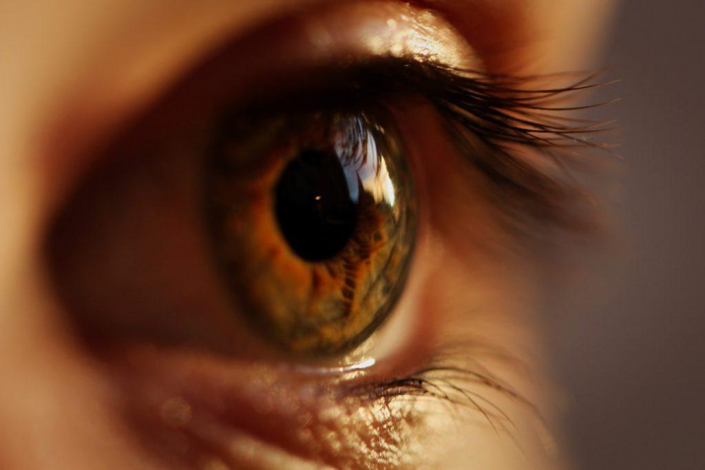 שריטות בעין