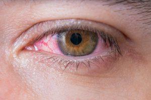 דלקת לחמית אלרגית
