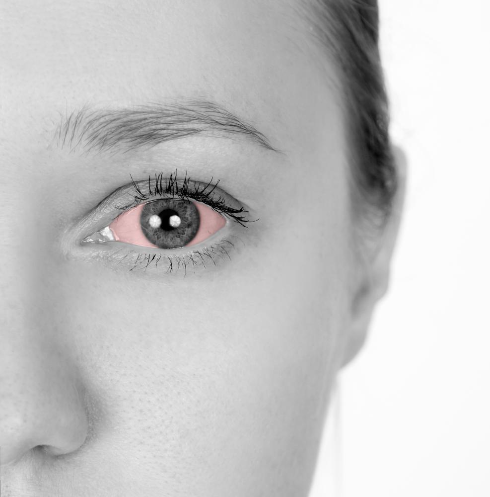 דלקת בלחמית העין