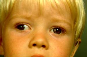 ילד הסובל מפזילה החוצה, אקזוטרופיה