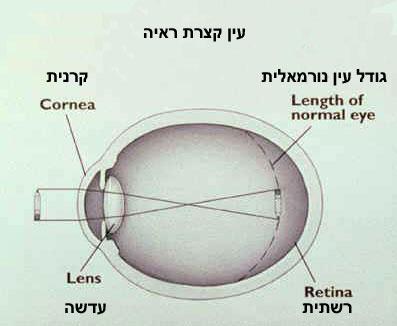 ליקוי ראייה - קוצר ראייה