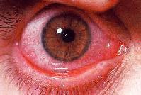 דלקת לחמית אביבית,אלרגיה בעיניים