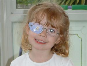 עין עצלה - טיפול באמצעות רטייה
