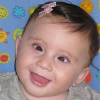 תינוקת עם פזילה מולדת לפני ניתוח פזילה