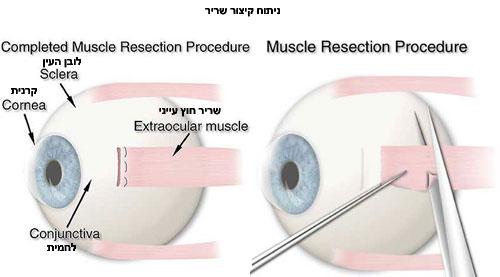 ניתוח פזילה: קיצור שריר