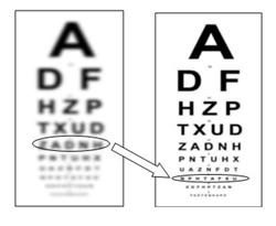 Очки для детей при близорукости