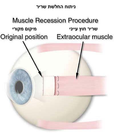 בניתוח פזילה מזיזים את מיקום השריר